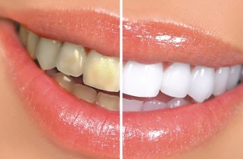 dr song home professional teeth whitening